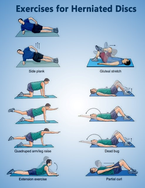 Role of Physiotherapy